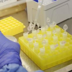 Mondaí compra kits para detecção rápida do coronavírus